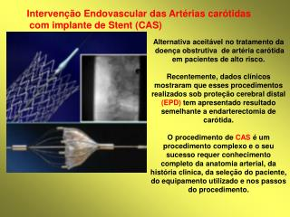 Alternativa aceit vel no tratamento da  doen a obstrutiva  de art ria car tida em pacientes de alto risco.   Recentement
