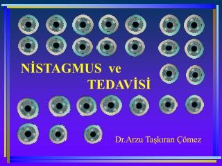 NISTAGMUS  ve            TEDAVISI