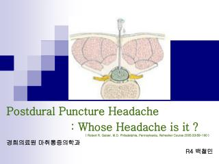 Postdural Puncture Headache                    : Whose Headache is it