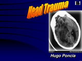 Hugo Poncia
