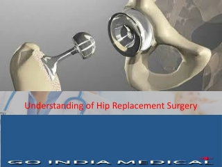 Hip Replacement Surgery With GoIndiaMedical