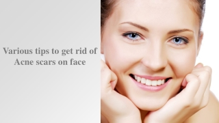 Various tips to get rid of Acne scars on face