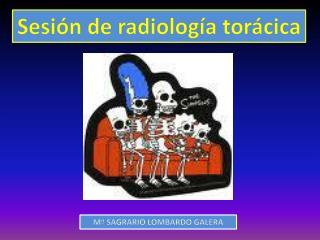 Sesi n de radiolog a tor cica