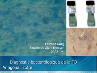 Diagnostic bacteriologique de la TB