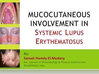 MUCOCUTANEOUS INVOLVEMENT IN Systemic Lupus Erythematosus