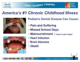 Pediatric Dental Disease Can Cause: