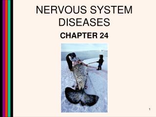 NERVOUS SYSTEM DISEASES
