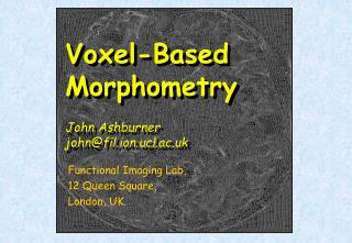 Voxel-Based Morphometry  John Ashburner johnfil.ion.ucl.ac.uk