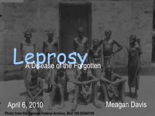 the biggest disease of our time is not leprosy or tuberculosis, but the feeling of being unwanted - Mother Teresa
