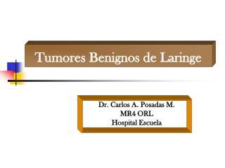 Tumores benignos de laringe