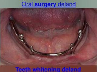 oral surgery deland