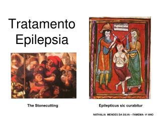 Tratamento Epilepsia