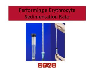 Performing a Erythrocyte Sedimentation Rate