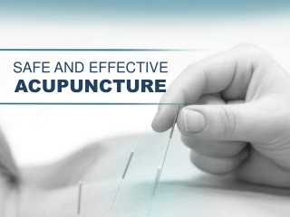 Acupuncture in Sunnyvale – Safe and Effective Therapy
