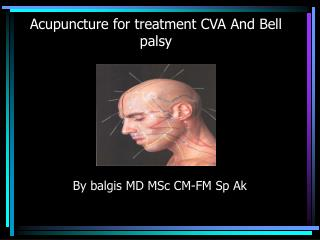 Acupuncture for treatment CVA And Bell palsy