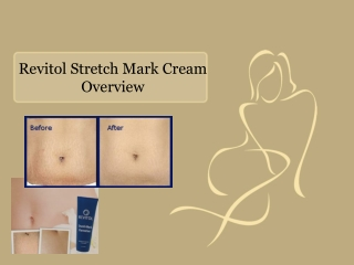 Revitol Stretch Mark Cream Overview