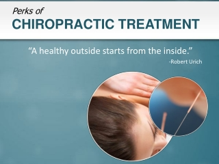 Chiropractic Sunnyvale, Perks of Chiropractic Treatment