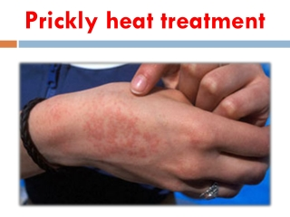 Prickly Heat Treatment with natural herbs - Herbal Remedies