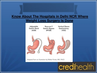 Know About Hospitals Where Weight Loss Surgery Is Done