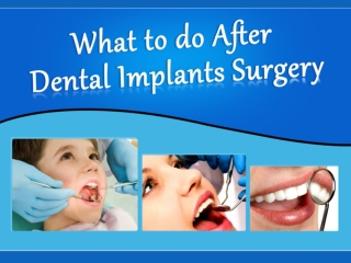 What to do After Dental Implants Surgery in Vista, CA