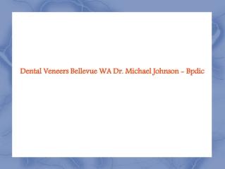 Veneers Bellevue WA, Crowns and Bridges Seattle - Bpdic