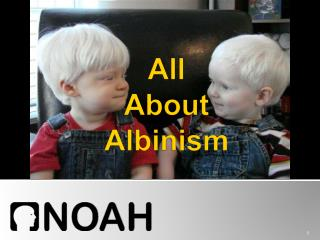 all  about  albinism