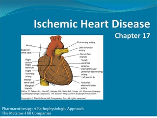 ischemic heart disease chapter 17