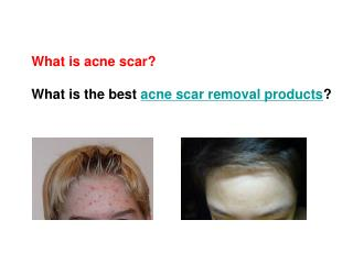 2011 best zenmed acne scar removal products