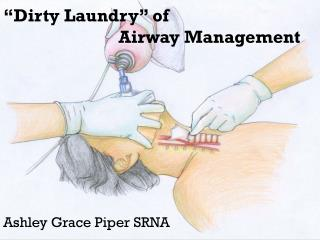 """Dirty Laundry"" of      Airway Management"