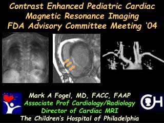 contrast enhanced pediatric cardiac magnetic resonance imaging ...
