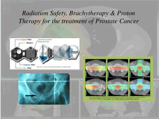 Radiation Safety, Brachytherapy & Proton Therapy for the treatment of Prostate Cancer