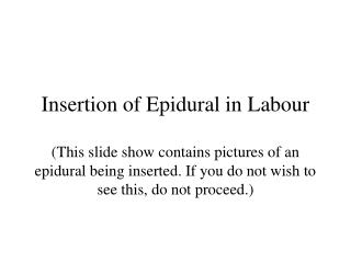 insertion of epidural in labour  this slide show contains pictures of an epidural being inserted. if you do not wish to