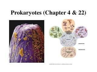 Prokaryotes (Chapter 4 & 22)
