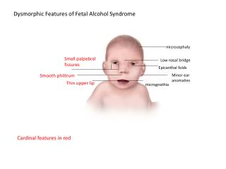 Dysmorphic  Features of Fetal Alcohol Syndrome
