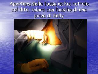 Apertura della fossa ischio rettale  col dito,  talora  con l' ausilio  di  una pinza  di Kelly