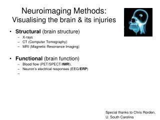 Neuroimaging Methods: Visualising the brain & its injuries