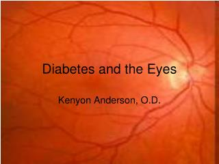 Diabetes and the Eyes