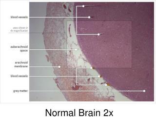 Normal Brain 2x