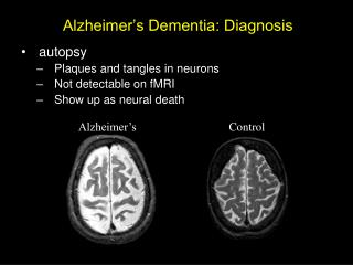 Alzheimer's Dementia: Diagnosis