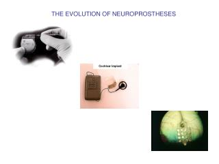 THE EVOLUTION OF NEUROPROSTHESES