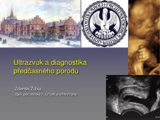 Ultrazvuk a diagnostika p?ed?asn�ho porodu