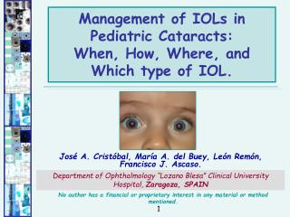 Management of IOLs in Pediatric Cataracts:  When, How, Where, and Which type of IOL.