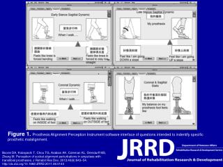 Figure 1.  Prosthesis Alignment Perception Instrument software interface of questions intended to indentify specific pr