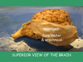dempseydsheep brain labeled