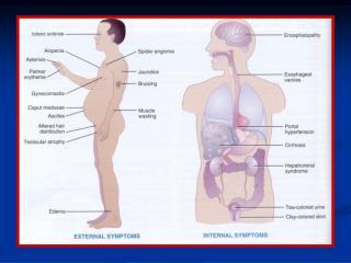 Pathophysiology of Ascites
