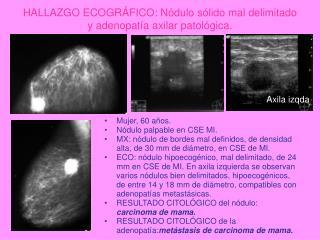 HALLAZGO ECOGRÁFICO: Nódulo sólido mal delimitado y adenopatía axilar patológica.