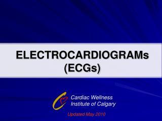 ELECTROCARDIOGRAMs ECGs