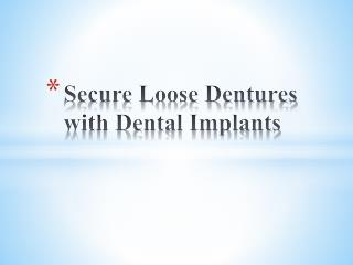 Secure Loose Dentures with Dental Implants
