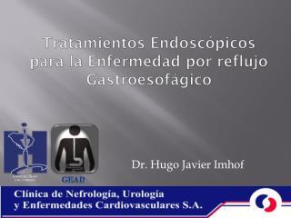 Tratamientos Endoscópicos para la Enfermedad por reflujo Gastroesofágico