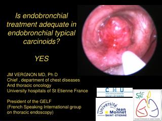 Is endobronchial treatment adequate in endobronchial typical carcinoids? YES